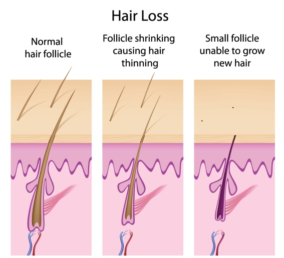 Men and Hair Loss: What are Your Options? (RxHQ.com)